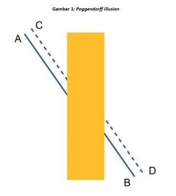 figure-1-poggendorf